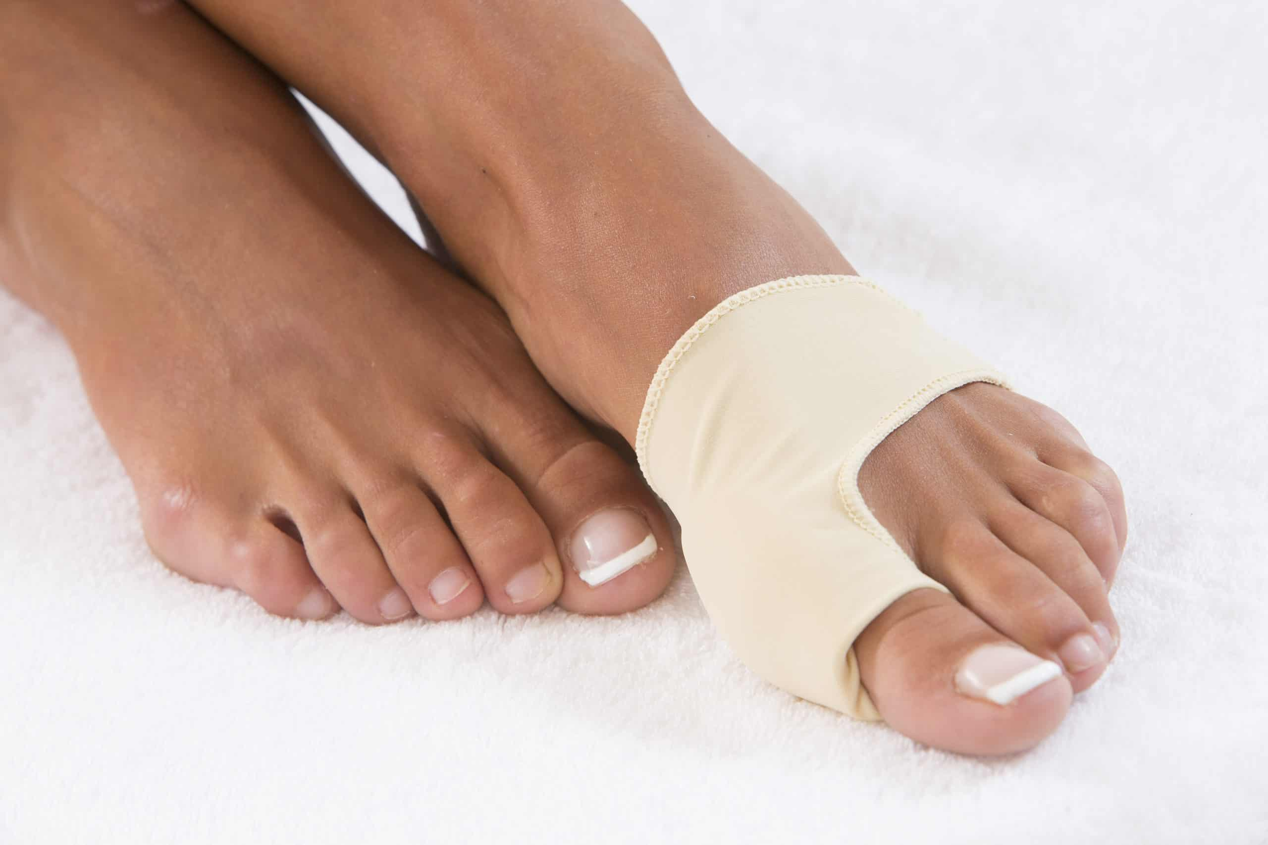 Hallux Valgus Bandage – Vs. Operation
