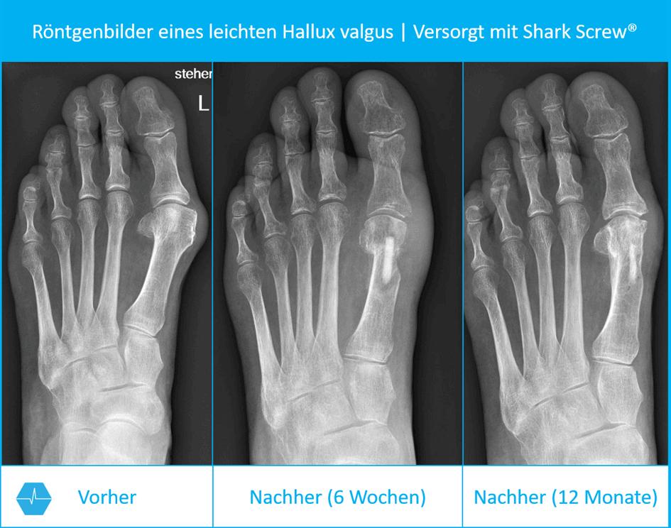 Röntgenbilder Vor Und Nach Einer Hallux Valgus Operation Nach Austin Mit Shark Screw®