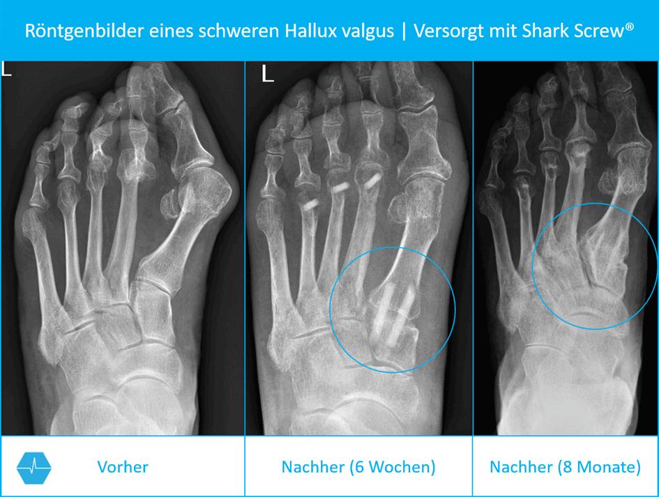 Röntgenbilder Vor Und Nach Einer Hallux Valgus Operation / Lapidus Arthrodese Mit Shark Screw®